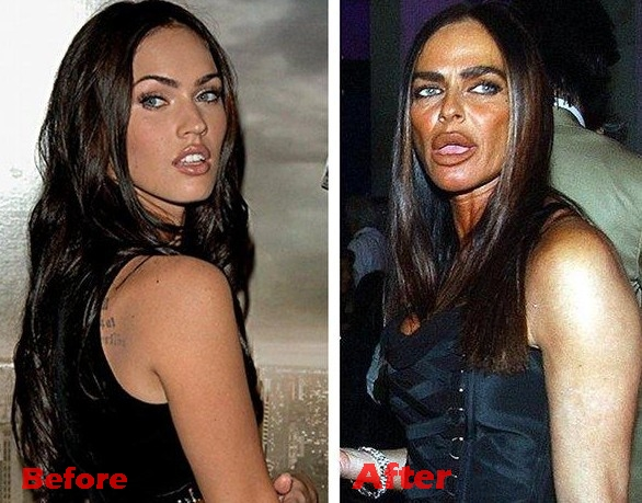 Michaela-Romanini-plastic-surgery-gone-wrong-before-and-after-photos